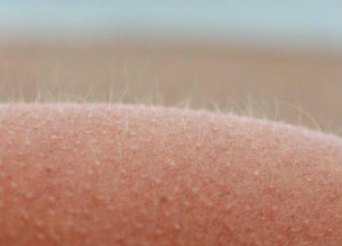 """新型人造毛发传感器 让假肢有""""触觉"""""""